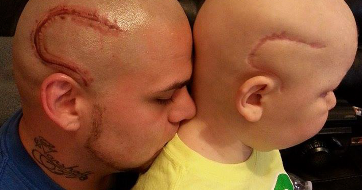 Dad Gets Scar Tattoo On His Head To Support His Son Who S Battling